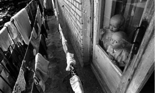 Люди после Чернобыля. Фото: дети Чернобыля с мутацией